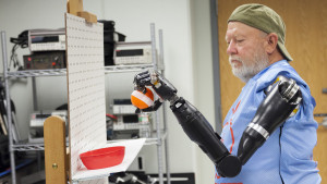 Leslie Baugh robotik protez kolu ile topu hareket ettiriyor.